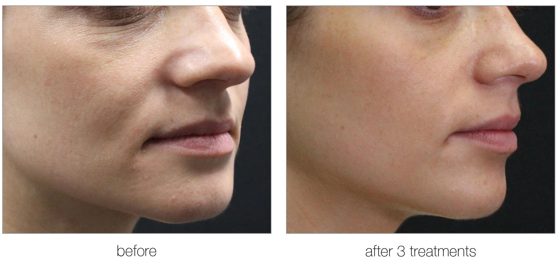 venus versa before and after